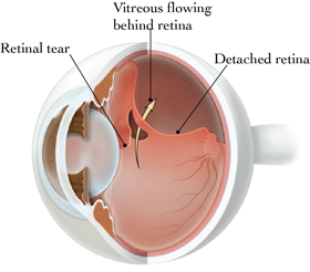 southern vitreoretinal associates | detached and torn retina, Skeleton